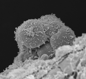 Scanning electron microscopy image of haematopoietic stem cells budding from the aortic endothelium. Image credit: http://www.hubrecht.eu/research/robin/research.html